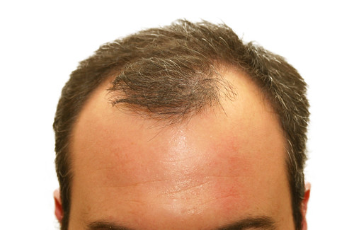 Dr. Joel Schlessinger discusses the causes of hair loss