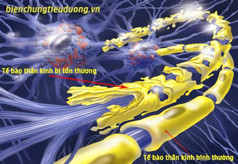 Các tế bào thần kinh bị tổn thương trong bệnh tiểu đường