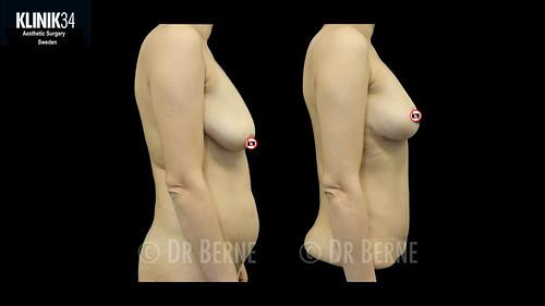 bröstlyft klinik34 facebook.002