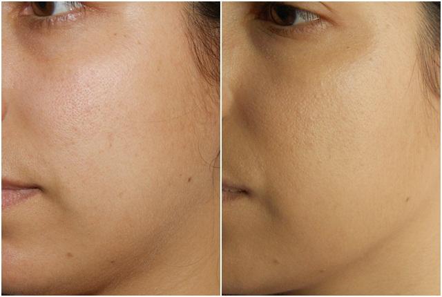 cobertura face and body