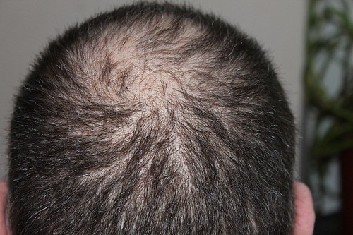 How to Stop Hair Loss in Men and Regrow Hair Naturally