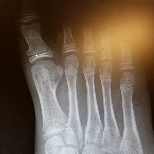 And he broke the big toe in two places, one on the growth plate (just left of the arrow) the other at the top middle of that same little bone. A shoe and crutches and no karate for a while, we'll know how long next week. #12yo