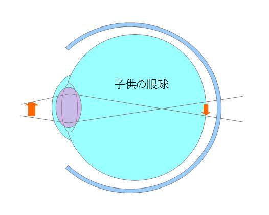 子供の眼球(遠視)(3)