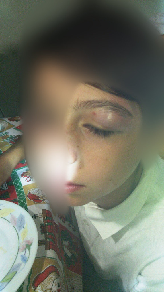 Rutigliano-Violenza e bullismo Aggredito da ignoti all'uscita da scuola  (3)