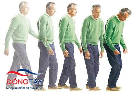 5 Bước giúp chẩn đoán bệnh parkinson