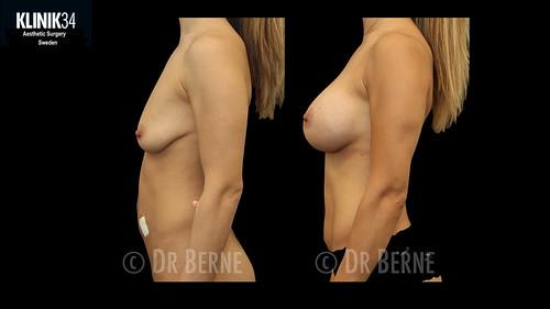 bröstlyft klinik34 facebook.037