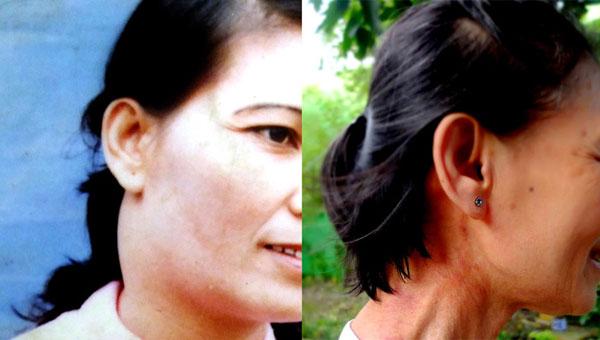 Người phụ nữ chữa khỏi ung thư vòm họng giai đoạn cuối nhờ uống