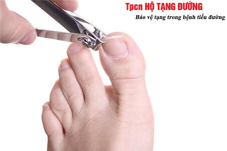 người bệnh tiểu đường cần chú ý khi cắt móng chân