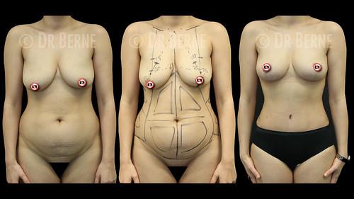 bröstlyft klinik34 facebook.003