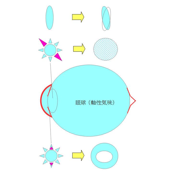乱視のメカニズム(図解)〜乱視の原因となる眼球の部位と症状などー視力回復コア・ポータル