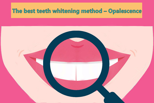 teeth-whitening-11