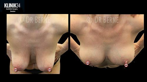 bröstlyft klinik34 facebook.010