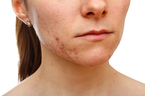 Dr. Joel Schlessinger discusses how Accutane works to fight acne