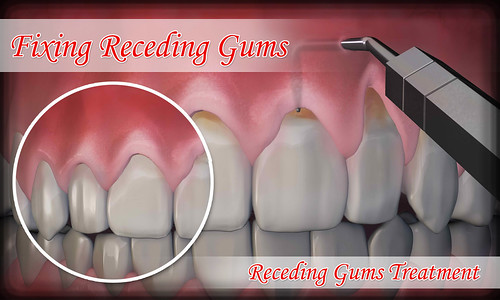 Home Remedies And Fixing Receding Gums