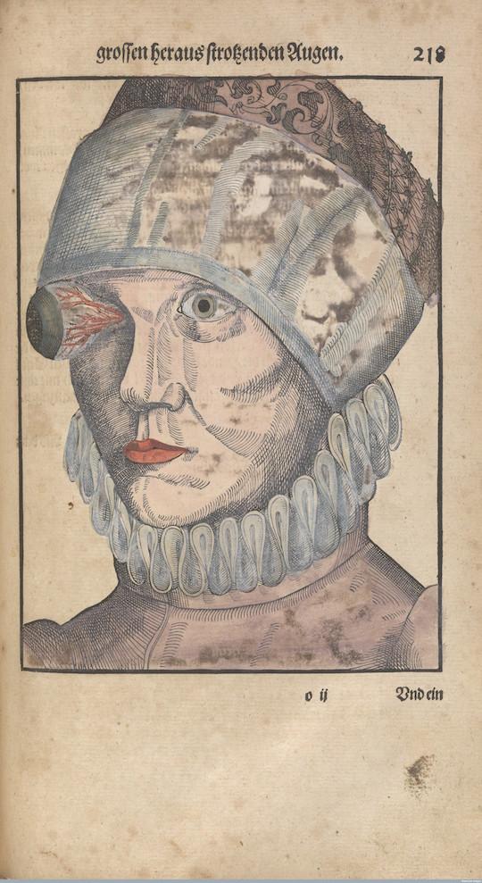 L0078612 Folio 218 recto, Bartisch, Ophthalmodouleia, 1583.