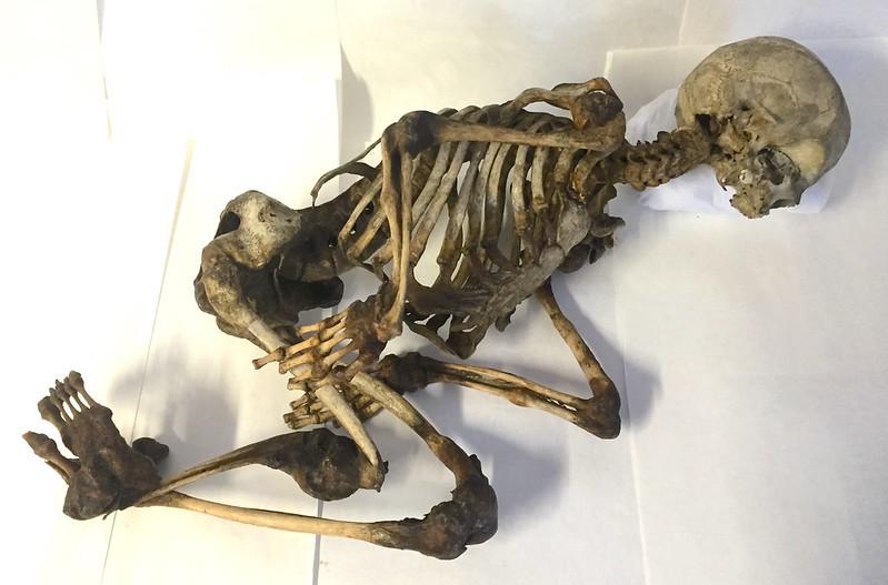 Skelet af 16 Aarig kvindelig Idiot. Størstedelen af Knoglerne stærkt angrebet af Osteomalaci.