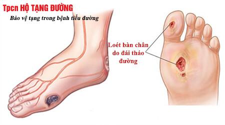 Vết loét do chân do đái tháo đường có thể gây đoạn chi