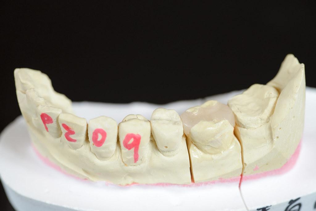 [台南] 用陶瓷補蛀牙!?佳美牙醫真是高科技 (1)