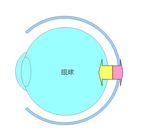 屈折性近視・軸性近視になるプロセスとメカニズム(パターン2)01