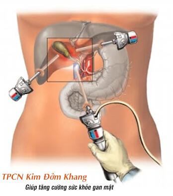 Phẫu thuật nội soi cắt túi mật