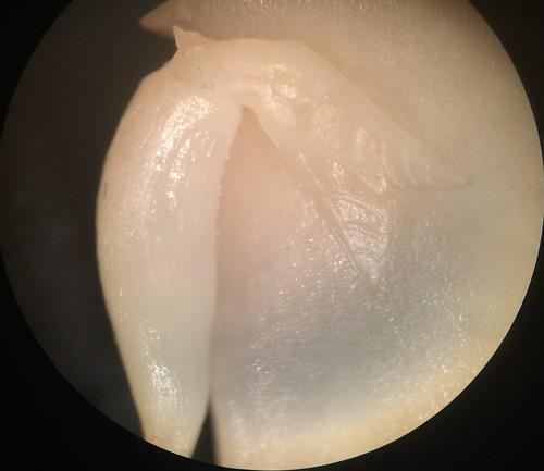 Plumule & Radicle of a seed
