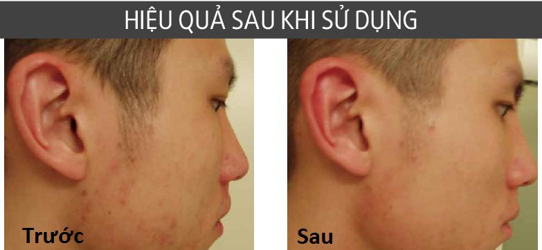 công dụng của kem md skin balancing solution