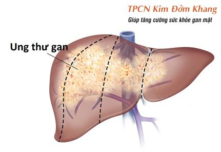Viêm xơ đường mật nguyên phát có thể dẫn đến ung thư gan