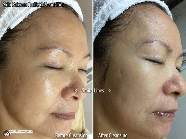 Skin Science Forlled Cleansing SideView
