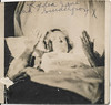 Woman lying in bed with smallpox by simpleinsomnia