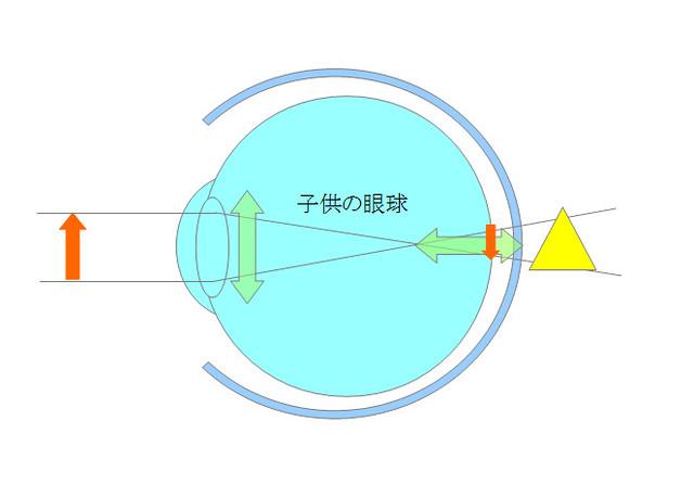 近視になるメカニズムを眼の構造から探るシリーズ02(成長期編)(1)