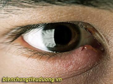 Người mắc bệnh đái tháo đường dễ bị nhiễm trùng tuyến mí mắt gây chắp lẹo