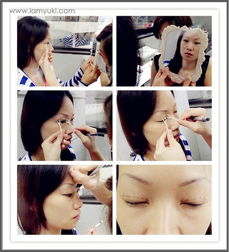 _Yuki scarless double eyelid centre for cosmetic rejuvenation surgery023001