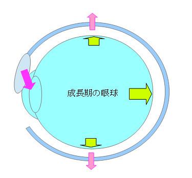 子供が近視になるプロセス04