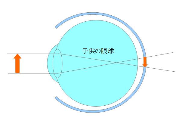 子供の眼球(遠視)(1)
