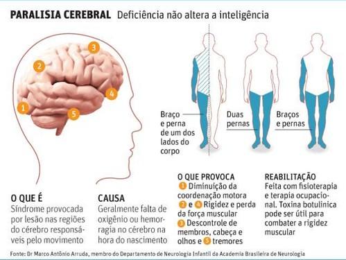 paralisia-cerebral-2-638