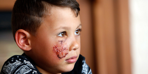 Heartless thieves burgle home while dog attack boy is in hospital