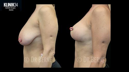 bröstlyft klinik34 facebook.008
