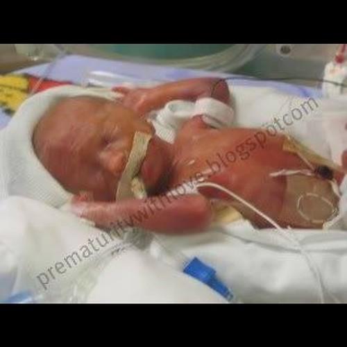 My sweet baby turned ten. #25weekpreemie #birthday #cerebralpalsy #hardthings #greatparty