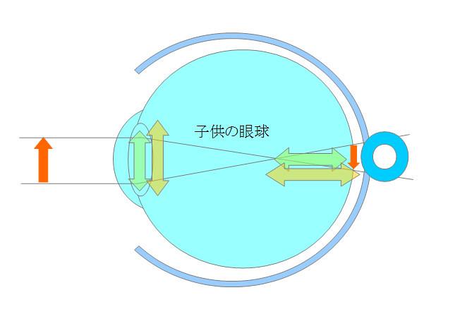 近視になるメカニズムを眼の構造から探るシリーズ02(成長期編)(4)