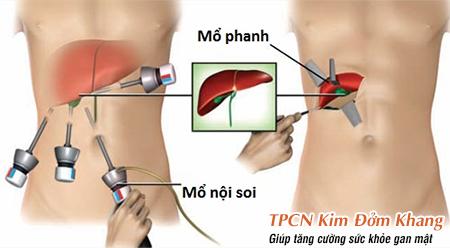 Mổ nội soi làm gia tăng tỷ lệ xuất hiện các cơn đau nhiều hơn so với mổ phanh