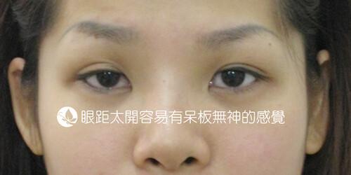眼整形Q&A懶人包|高雄美妍醫美診所推薦分享 (4)