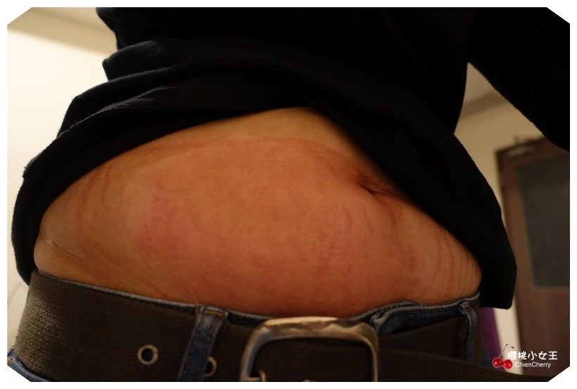 美診所 低溫減脂 MICOOL Coolsculpturing 韓國減脂 體雕 抽脂 無傷口減脂 減重