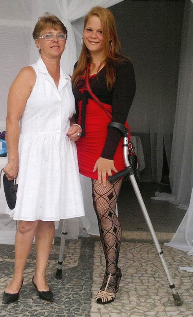pantyhose Crutches and