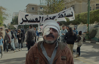 Egypt meant even more to this protester ( and 80 others ) than the loss of his eye.