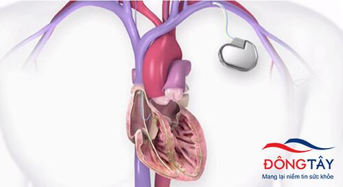 Máy cấy ghép máy khử rung tim (ICD) giúp phục hồi nhịp tim
