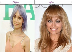 After Before Plastic Surgery Photos Of Nicole Richie She Looks Remarkable As Of Late