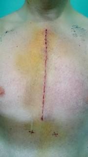 Surgery Scar Day Seven