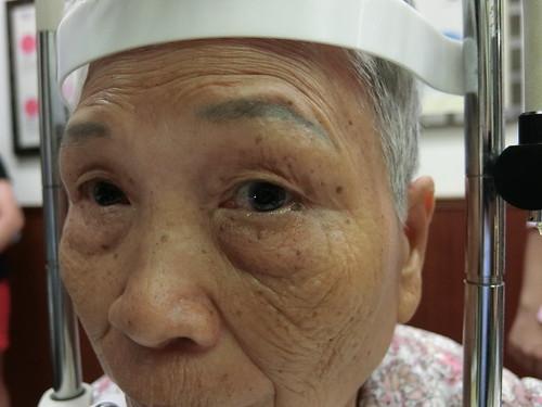 陳征宇醫師專訪:白內障手術你一定要知道的5個重要觀念 (5)