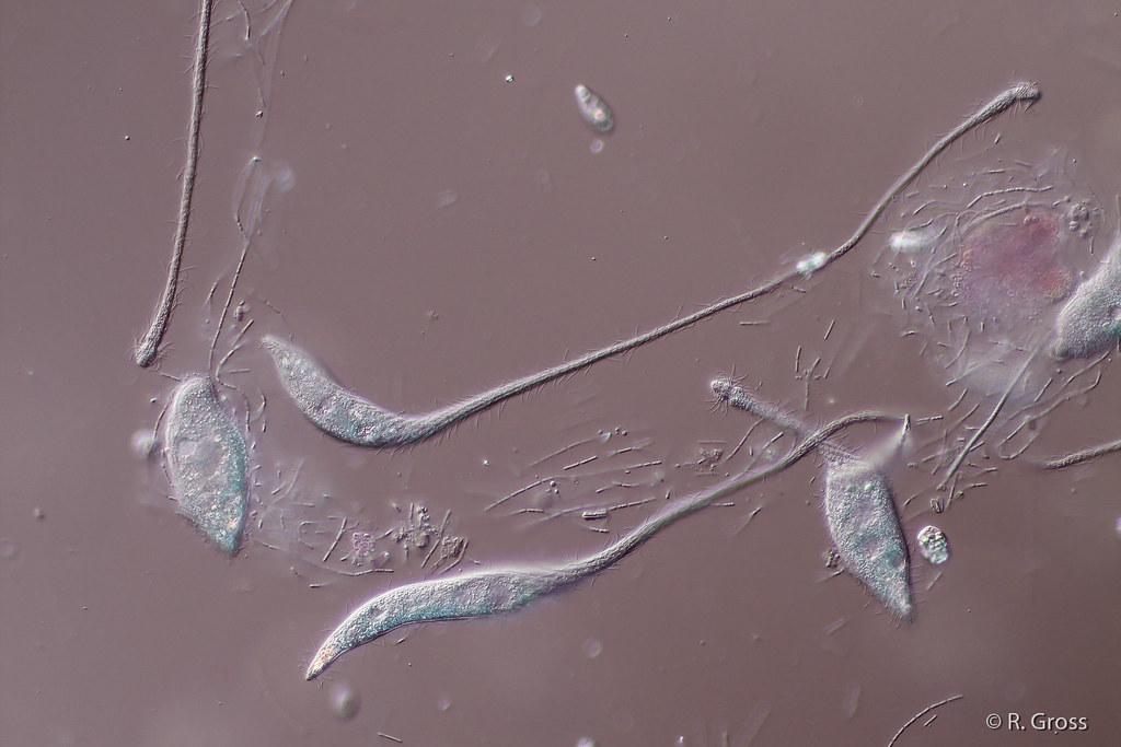 Lacrymaria sp. (microscope, magnification 250x DIC)